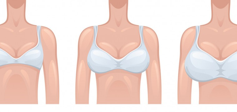 Brüste 85c