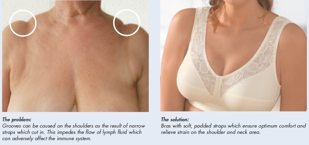 If the straps are not position right on the shoulder this can cause pain and stretch marks digging into the shoulders.