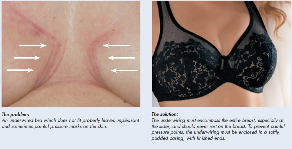 If the underwire bra does not fit it can dig in and cause pain and discomfort, a comfortable bra can help.